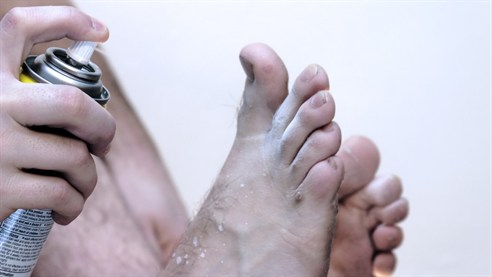 Athletes Foot – What is it? / How do I know I have it?