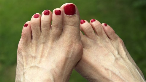 More than 15% of women in the UK suffer from bunions