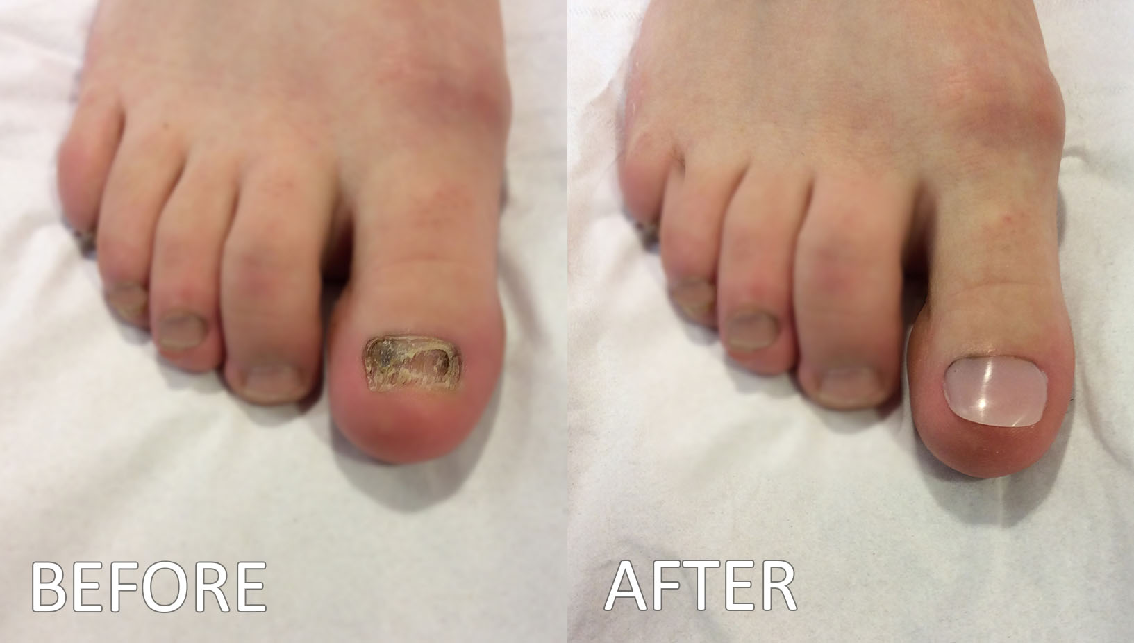 Toenail Reconstruction - Newforge Podiatry - Malone Road, Lisburn ...